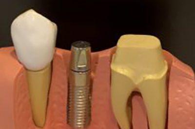 implantesmoreti.jpg