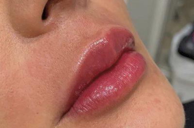 reconstrução de lábio